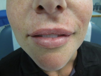 32 year old female treated with Restylane for lip augmentation after 1302243