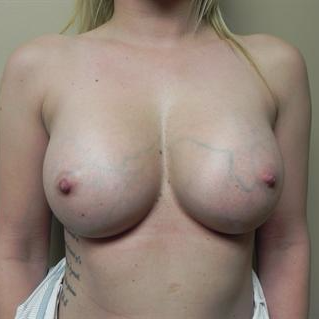 25-34 year old woman treated with Breast Augmentation after 3378437