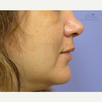 35-44 year old woman treated with Lip Augmentation before 3421907