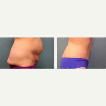 25-34 year old woman treated with Tummy Tuck before 3425168