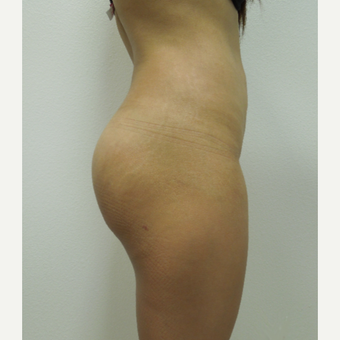 35-44 year old woman treated with Tummy Tuck after 2956192