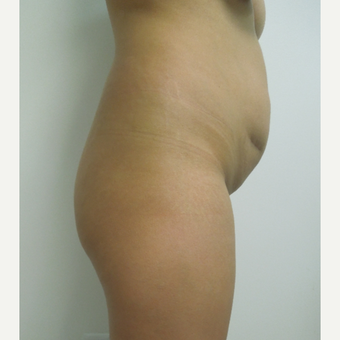 35-44 year old woman treated with Tummy Tuck before 2956192