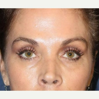 Tear Trough | Lower Eyelid Treatment with Bellafill before 1659721