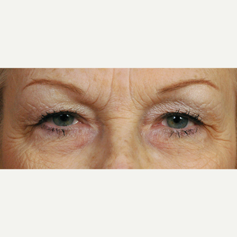 65-74 year old woman treated with Eyelid Surgery before 3454148