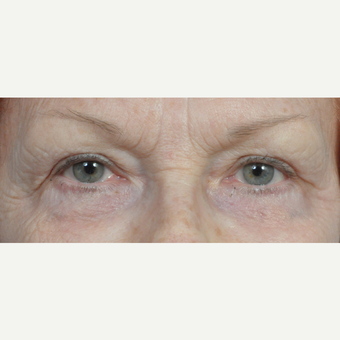 65-74 year old woman treated with Eyelid Surgery after 3454148