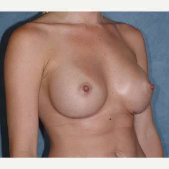 29 Year-Old Breast Augmentation after 3814221