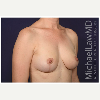 35-44 year old woman treated with Breast Reduction after 3075621