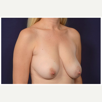 35-44 year old woman treated with Breast Reduction before 3075621