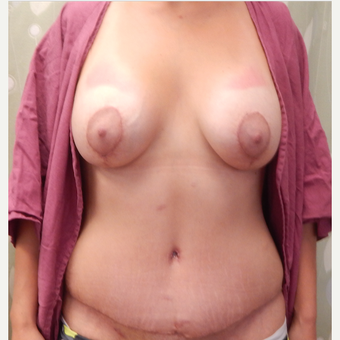 35-44 year old woman treated with Mommy Makeover after 3813859
