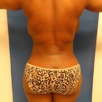 Patient Case #Top Brazilian buttocks