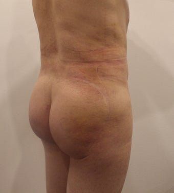 25-34 year old man treated with Brazilian Butt Lift 3338391