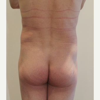 25-34 year old man treated with Brazilian Butt Lift before 3338391