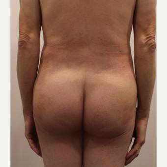 25-34 year old man treated with Brazilian Butt Lift after 3338391