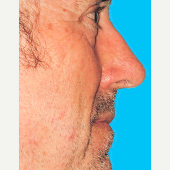 Rhinoplasty before 3814336