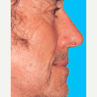 Rhinoplasty after 3814336