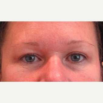 45-54 year old woman treated with Eyelid Surgery after 3713514