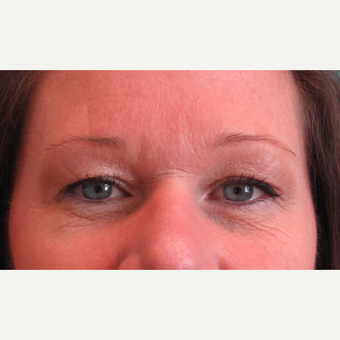 45-54 year old woman treated with Eyelid Surgery before 3713514