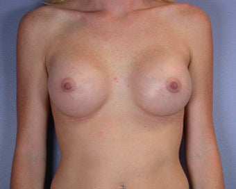 Breast Augmentation after 281404