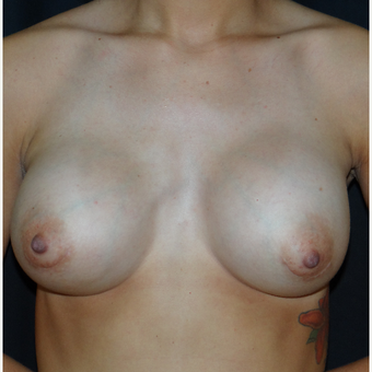 25-34 year old woman treated with Breast Augmentation after 3304268