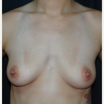 25-34 year old woman treated with Breast Augmentation before 3304268