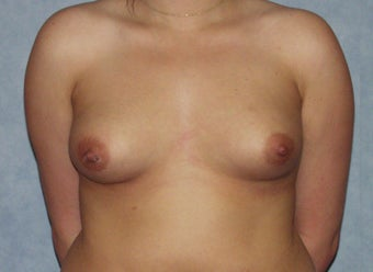 Breast augmentation on a 21 years old at  6 months post-op: 400cc saline breast implants, dual-plane technique. before 981447