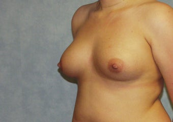 Breast augmentation on a 21 years old at  6 months post-op: 400cc saline breast implants, dual-plane technique. 981447
