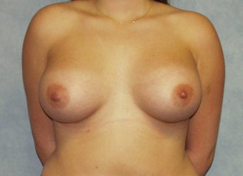Breast augmentation on a 21 years old at  6 months post-op: 400cc saline breast implants, dual-plane technique. after 981447