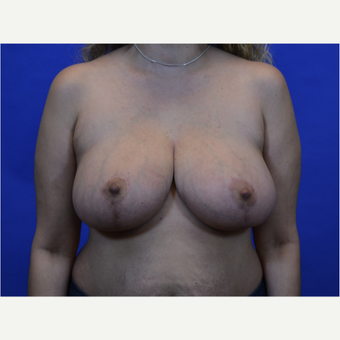 35-44 year old woman treated with Breast Reduction after 3579962