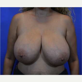 35-44 year old woman treated with Breast Reduction before 3579962