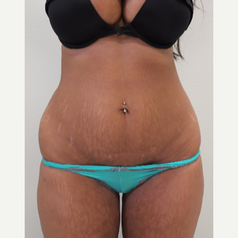 35-44 year old woman treated with Tummy Tuck before 3460168