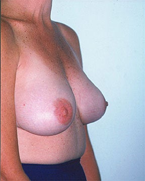 Breast Asymmetry Correction after 281312
