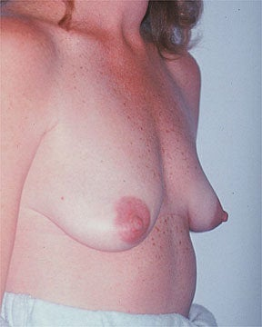 Breast Asymmetry Correction before 281312