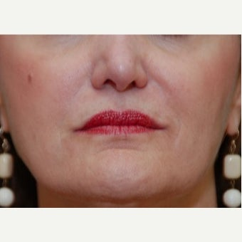 45-54 year old woman treated with Restylane after 1895932