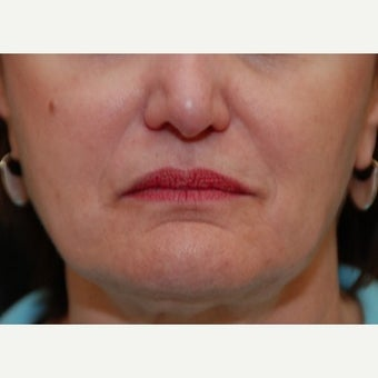 45-54 year old woman treated with Restylane before 1895932