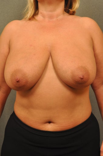 Breast Reconstruction with Tissue Expanders and application of Acellular Dermal Matrix