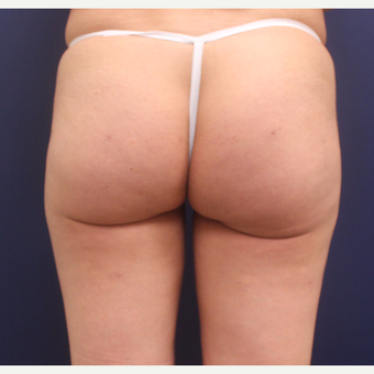 35-44 year old woman treated with Cellulaze after 3142577
