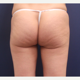 35-44 year old woman treated with Cellulaze before 3142577