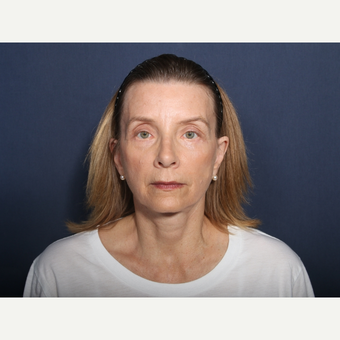 55-64 year old woman treated with Facelift (view 1 of 2) after 3226111