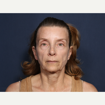 55-64 year old woman treated with Facelift (view 1 of 2) before 3226111