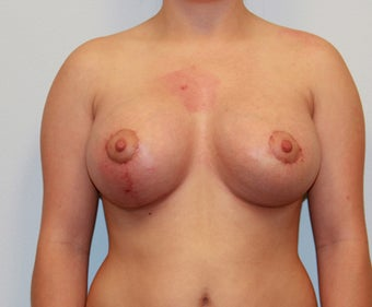 Dual Plane III (submuscular) Augmentation and Mastopexy (Circumareolar on left, Circumvertical on Right) after 932597