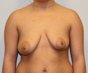 Dual Plane III (submuscular) Augmentation and Mastopexy (Circumareolar on left, Circumvertical on Right) before 932597