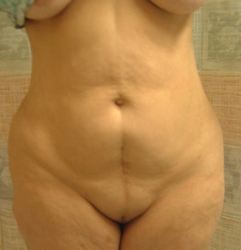 54 year old woman has Belt Lipectomy before 984190