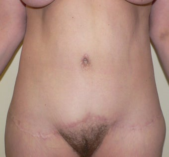 54 year old woman has Belt Lipectomy after 984190