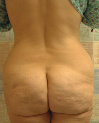 54 year old woman has Belt Lipectomy 984190