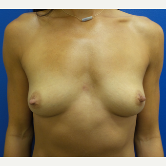 25-34 year old woman treated with Breast Augmentation before 3293232