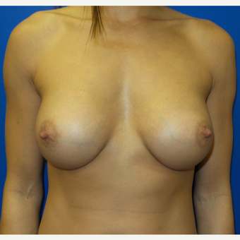 25-34 year old woman treated with Breast Augmentation after 3293232