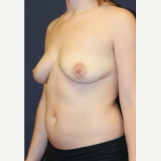22 year old woman treated with Natrelle Breast Implants before 3695912