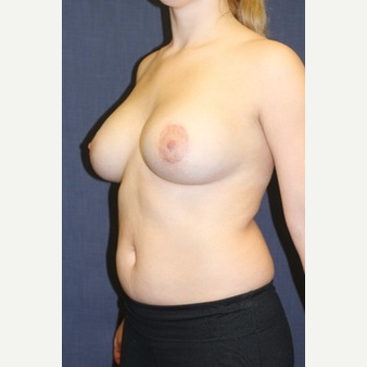 22 year old woman treated with Natrelle Breast Implants after 3695912