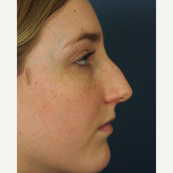 18-24 year old woman treated with Rhinoplasty before 3245067