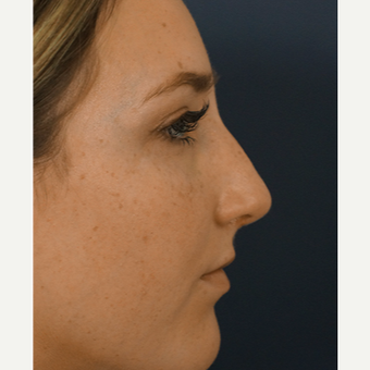 18-24 year old woman treated with Rhinoplasty after 3245067